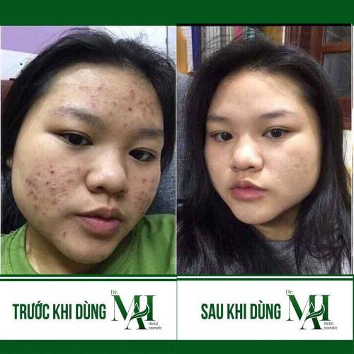 Trị Mụn Dr Mai