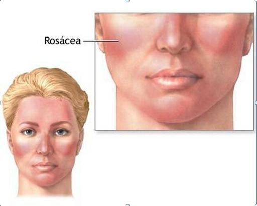 Hiện tượng da nhạy cảm thường xuyên bị đỏ