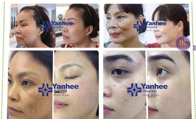 Một số bệnh nhân nám được điều trị bằng bộ sản phẩm ngay tại bệnh viện Yanhee