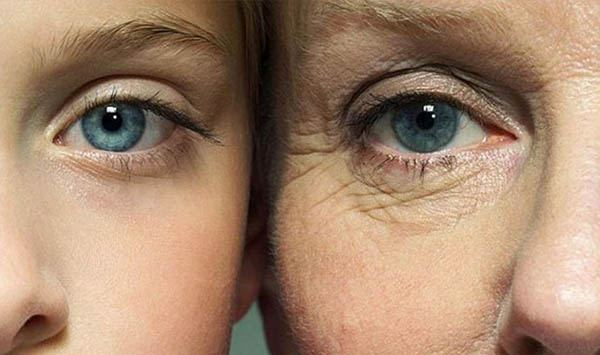 Lão hóa bắt đầu mạnh ở tuổi 25 và dễ nhận biết ở vùng mắt