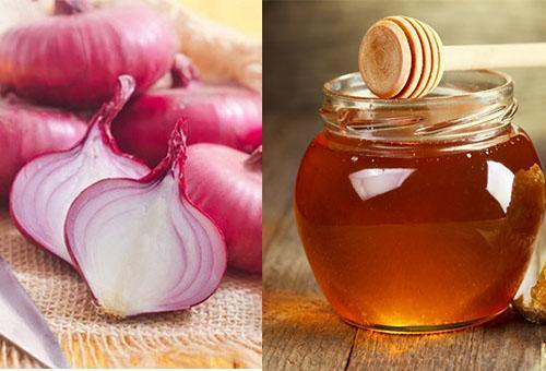 Cách Tóc mọc nhanh từ hành tây với mật ong