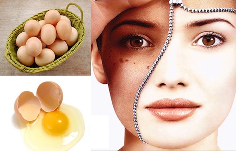 Cách trị nám da bằng lòng trắng trứng gà
