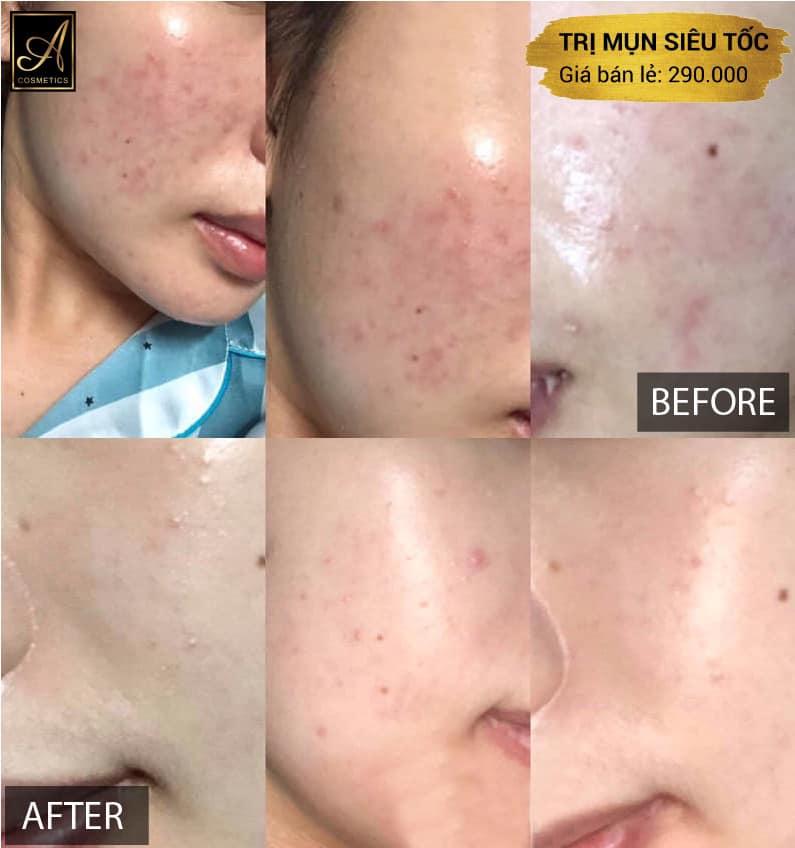 làn da thay đổi rõ rệt sau khi sử dụng bộ trị mụn a cosmetics