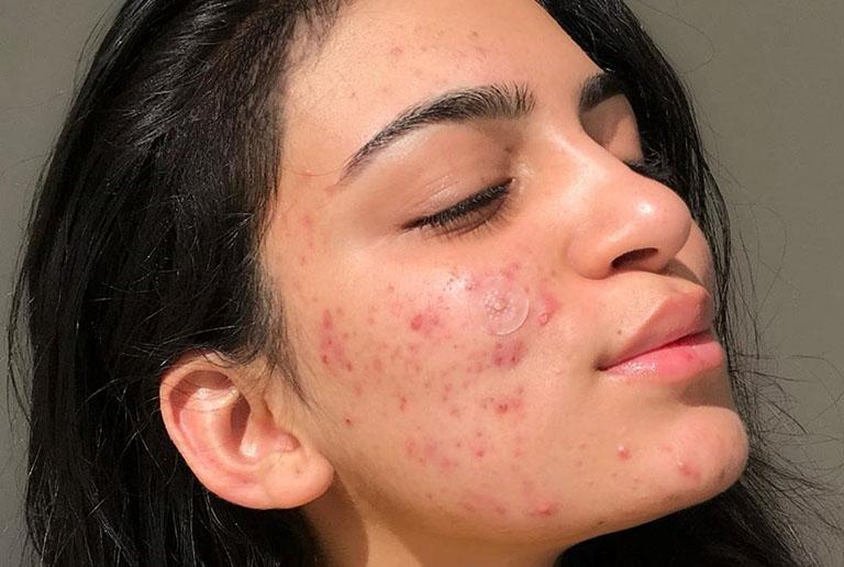 Da mụn có thể sử dụng được Sữa Rửa Mặt Trà Xanh A Cosmetics